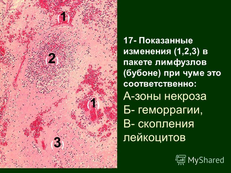 17- Показанные изменения (1,2,3) в пакете лимфузлов (бубоне) при чуме это соответственно: А-зоны некроза Б- геморрагии, В- скопления лейкоцитов (1)(1) (2)(2) (3)(3) (1)(1)