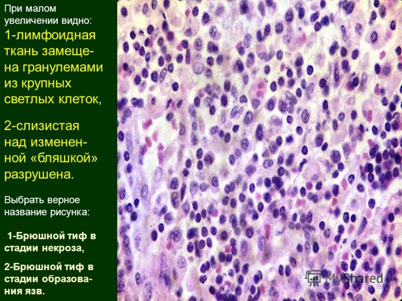 Ткань Лимфоидная фото