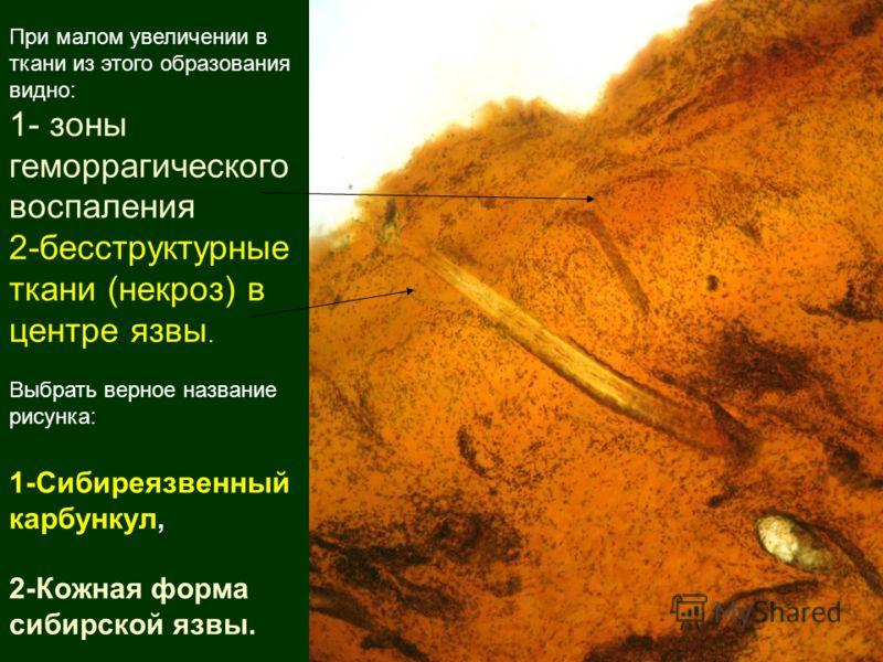 При малом увеличении в ткани из этого образования видно: 1- зоны геморрагического воспаления 2-бесструктурные ткани (некроз) в центре язвы. Выбрать верное название рисунка: 1-Сибиреязвенный карбункул, 2-Кожная форма сибирской язвы.