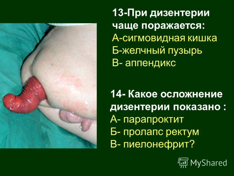 13-При дизентерии чаще поражается: А-сигмовидная кишка Б-желчный пузырь В- аппендикс 14- Какое осложнение дизентерии показано : А- парапроктит Б- пролапс ректум В- пиелонефрит?