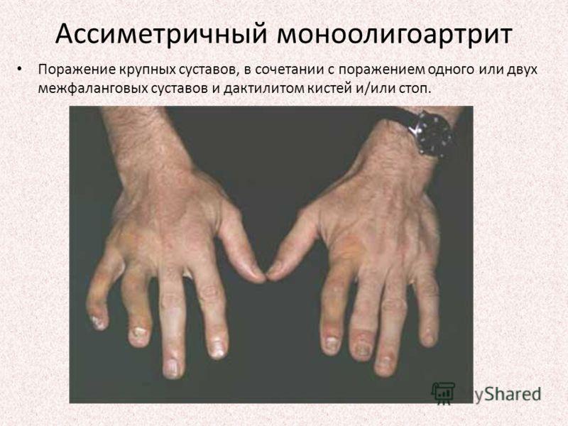 Ассиметричный моноолигоартрит Поражение крупных суставов, в сочетании с поражением одного или двух межфаланговых суставов и дактилитом кистей и/или стоп.
