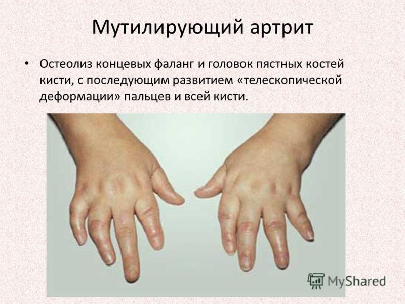 Мутилирующий артрит Остеолиз концевых фаланг и головок пястных костей кисти, с последующим развитием «телескопической деформации» пальцев и всей кисти.
