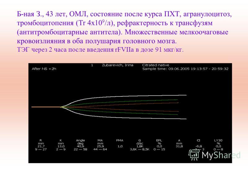 Б-ная З., 43 лет, ОМЛ, состояние после курса ПХТ, агранулоцитоз, тромбоцитопения (Tr 4x10 9 /л), рефрактерность к трансфузям (антитромбоцитарные антитела). Множественные мелкоочаговые кровоизлияния в оба полушария головного мозга. ТЭГ через 2 часа по