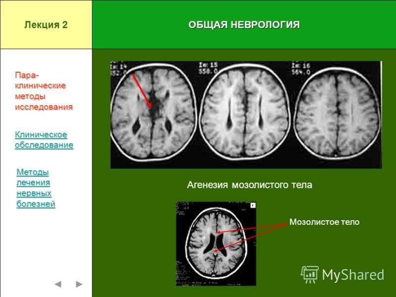 ОБЩАЯ НЕВРОЛОГИЯ Агенезия мозолистого тела Пара-клиническиеметодыисследования Клиническое обследование Методы лечения нервных болезней Лекция 2 Мозолистое тело