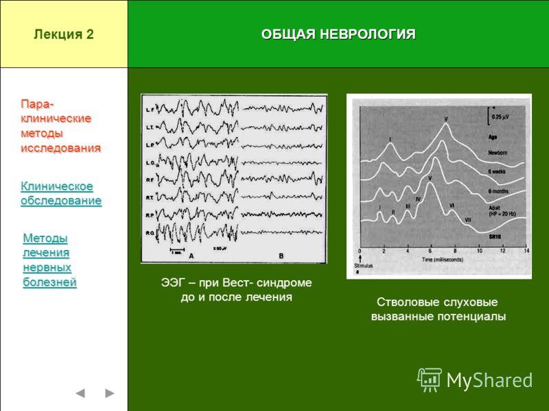 ОБЩАЯ НЕВРОЛОГИЯ ЭЭГ – при Вест- синдроме до и после лечения Стволовые слуховые вызванные потенциалы Пара-клиническиеметодыисследования Клиническое обследование Методы лечения нервных болезней Лекция 2