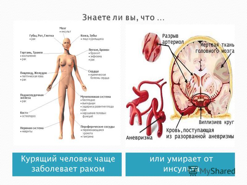 Курящий человек чаще заболевает раком или умирает от инсульта