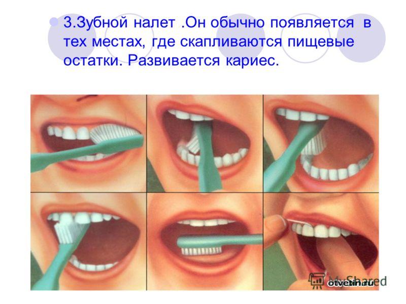 3.Зубной налет.Он обычно появляется в тех местах, где скапливаются пищевые остатки. Развивается кариес.