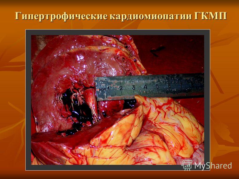 Кардиомиопатия фото