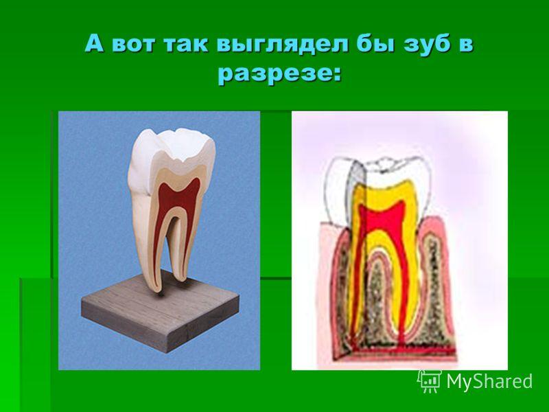 А вот так выглядел бы зуб в разрезе: