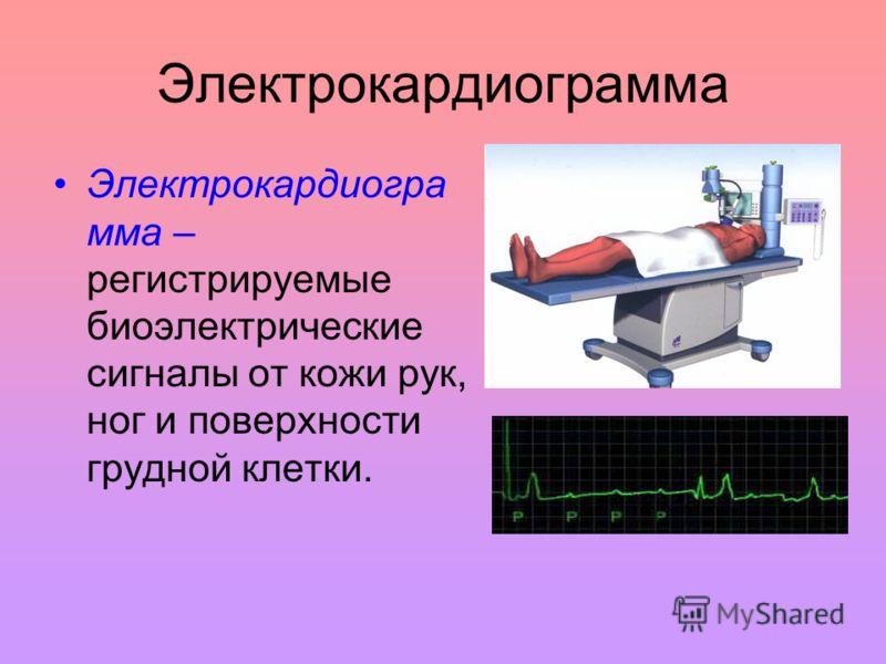 Электрокардиограмма Электрокардиогра мма – регистрируемые биоэлектрические сигналы от кожи рук, ног и поверхности грудной клетки.