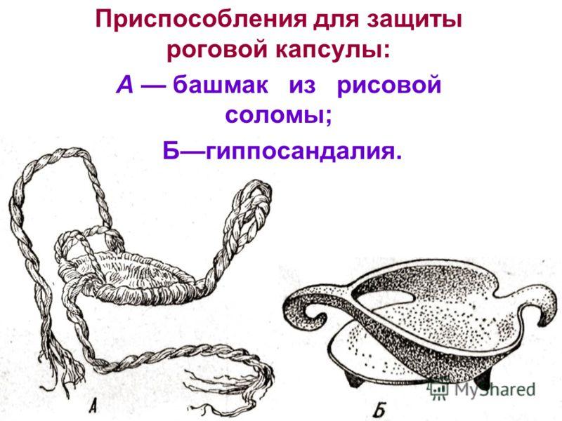 Приспособления для защиты роговой капсулы: А башмак из рисовой соломы; Бгиппосандалия.