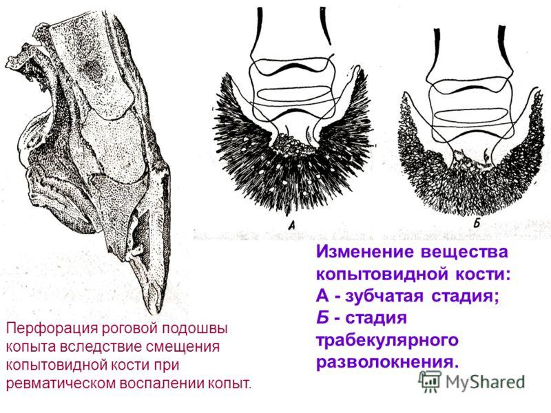 Перфорация роговой подошвы копыта вследствие смещения копытовидной кости при ревматическом воспалении копыт. Изменение вещества копытовидной кости: А - зубчатая стадия; Б - стадия трабекулярного разволокнения.