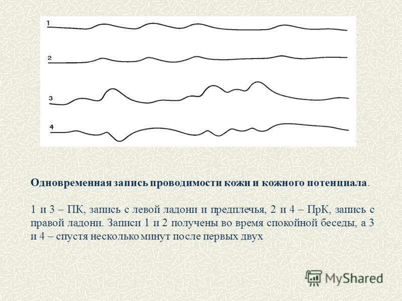 Одновременная запись проводимости кожи и кожного потенциала. 1 и 3 – ПК, запись с левой ладони и предплечья, 2 и 4 – ПрК, запись с правой ладони. Записи 1 и 2 получены во время спокойной беседы, а 3 и 4 – спустя несколько минут после первых двух