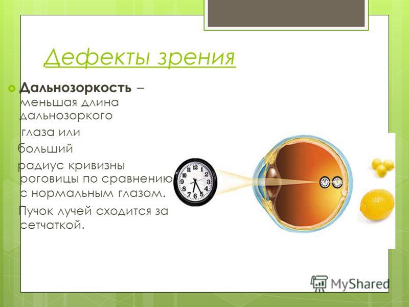 Дефекты зрения Дальнозоркость – меньшая длина дальнозоркого глаза или больший радиус кривизны роговицы по сравнению с нормальным глазом. Пучок лучей сходится за сетчаткой.