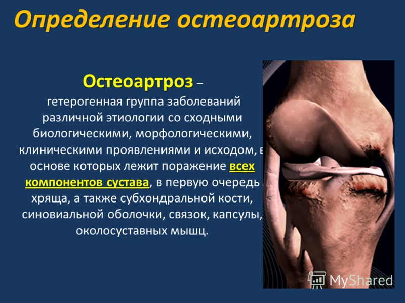 Определение остеоартроза Остеоартроз Остеоартроз – всех компонентов сустава гетерогенная группа заболеваний различной этиологии со сходными биологическими, морфологическими, клиническими проявлениями и исходом, в основе которых лежит поражение всех к