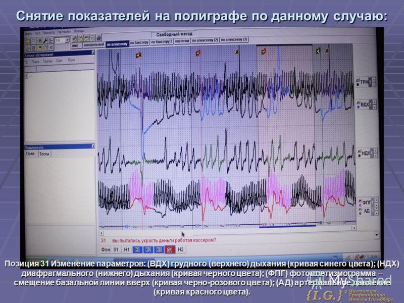 Снятие показателей на полиграфе по данному случаю: Позиция 31 Изменение параметров: (ВДХ) грудного (верхнего) дыхания (кривая синего цвета); (НДХ) диафрагмального (нижнего) дыхания (кривая черного цвета); (ФПГ) фотоплетизмограмма – смещение базальной