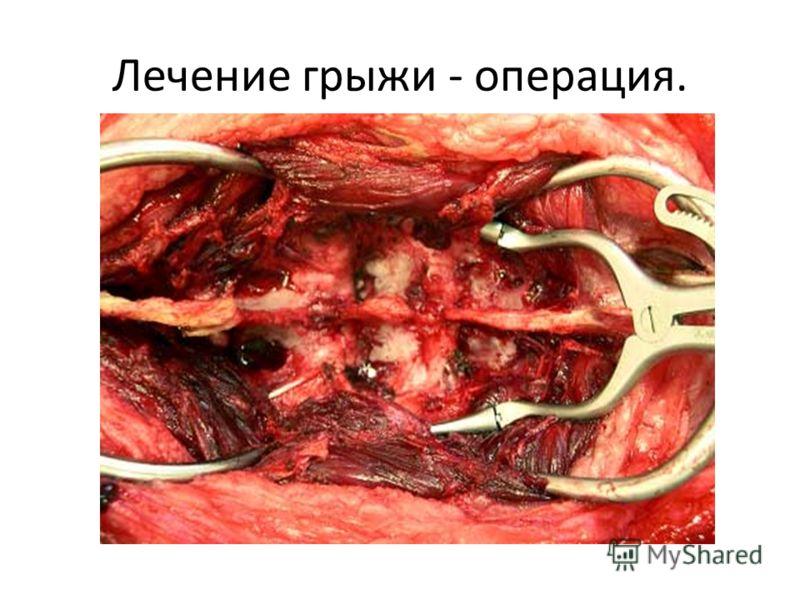 Лечение грыжи - операция.