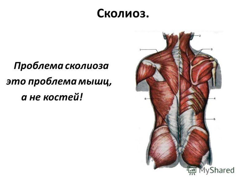 Сколиоз. Проблема сколиоза это проблема мышц, а не костей!