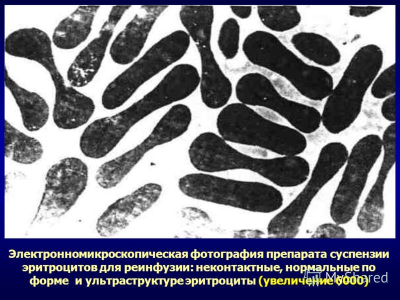 Электронномикроскопическая фотография препарата суспензии эритроцитов для реинфузии: неконтактные, нормальные по форме и ультраструктуре эритроциты (увеличение 6000)