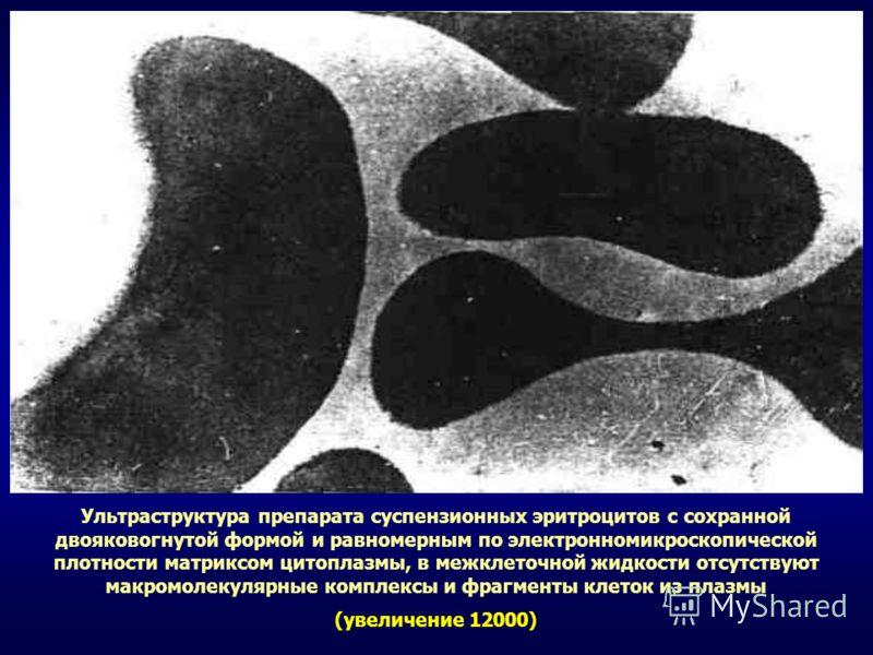 Ультраструктура препарата суспензионных эритроцитов с сохранной двояковогнутой формой и равномерным по электронномикроскопической плотности матриксом цитоплазмы, в межклеточной жидкости отсутствуют макромолекулярные комплексы и фрагменты клеток из пл