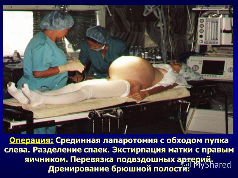 Операция: Срединная лапаротомия с обходом пупка слева. Разделение спаек. Экстирпация матки с правым яичником. Перевязка подвздошных артерий. Дренирование брюшной полости.