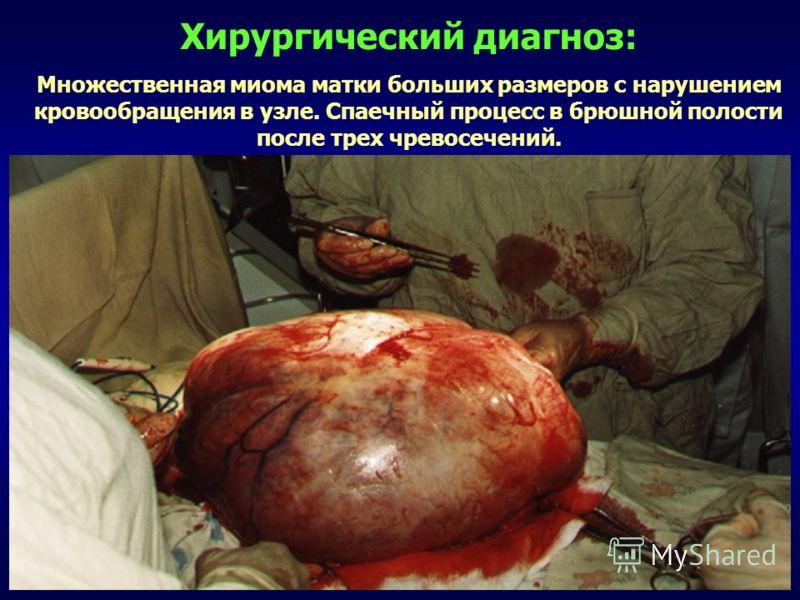 Хирургический диагноз: Множественная миома матки больших размеров с нарушением кровообращения в узле. Спаечный процесс в брюшной полости после трех чревосечений.