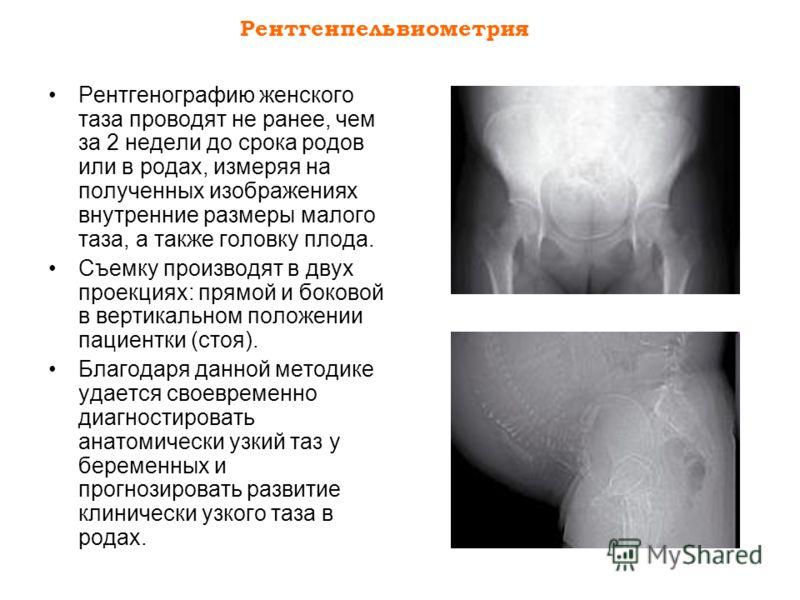Рентгенпельвиометрия Рентгенографию женского таза проводят не ранее, чем за 2 недели до срока родов или в родах, измеряя на полученных изображениях внутренние размеры малого таза, а также головку плода. Съемку производят в двух проекциях: прямой и бо