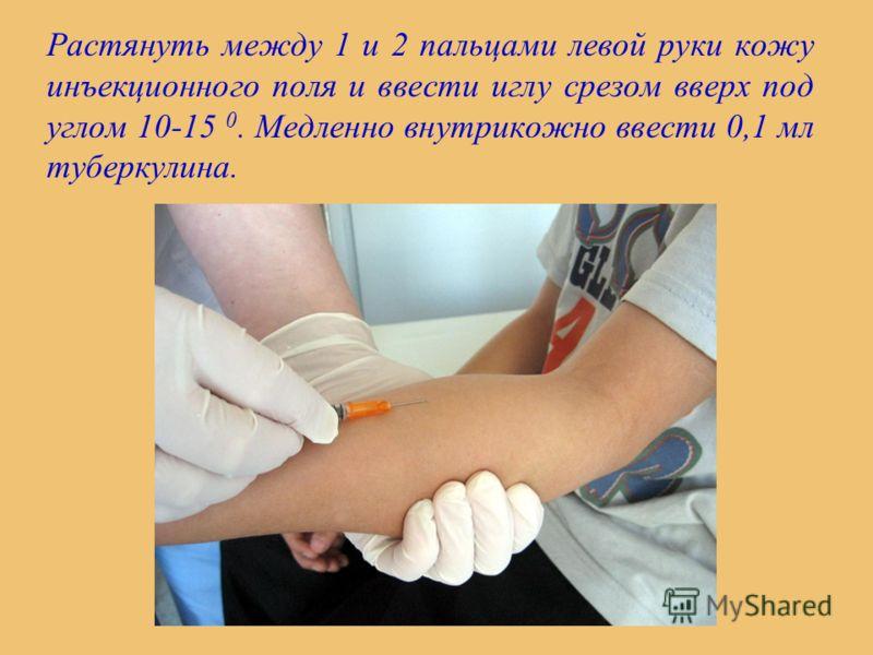Растянуть между 1 и 2 пальцами левой руки кожу инъекционного поля и ввести иглу срезом вверх под углом 10-15 0. Медленно внутрикожно ввести 0,1 мл туберкулина.
