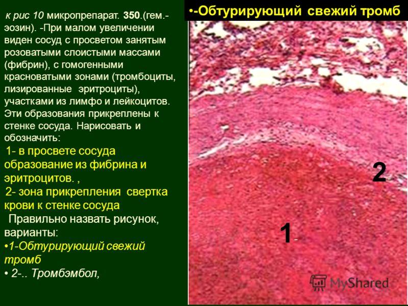 к рис 10 микропрепарат. 350.(гем.- эозин). -При малом увеличении виден сосуд с просветом занятым розоватыми слоистыми массами (фибрин), с гомогенными красноватыми зонами (тромбоциты, лизированные эритроциты), участками из лимфо и лейкоцитов. Эти обра