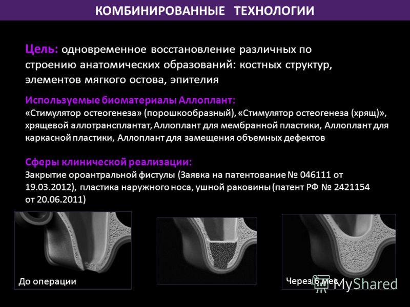КОМБИНИРОВАННЫЕ ТЕХНОЛОГИИ Используемые биоматериалы Аллоплант: «Стимулятор остеогенеза» (порошкообразный), «Стимулятор остеогенеза (хрящ)», хрящевой аллотрансплантат, Аллоплант для мембранной пластики, Аллоплант для каркасной пластики, Аллоплант для
