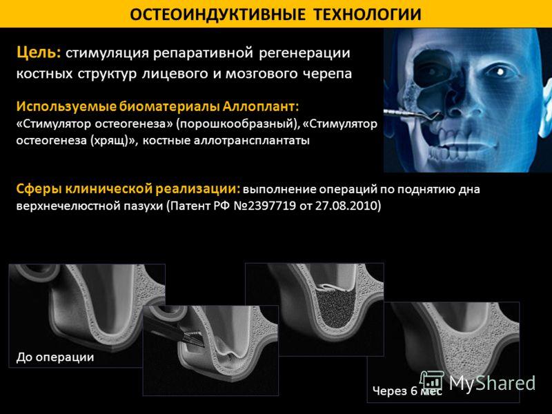 ОСТЕОИНДУКТИВНЫЕ ТЕХНОЛОГИИ Цель: стимуляция репаративной регенерации костных структур лицевого и мозгового черепа Используемые биоматериалы Аллоплант: «Стимулятор остеогенеза» (порошкообразный), «Стимулятор остеогенеза (хрящ)», костные аллотрансплан