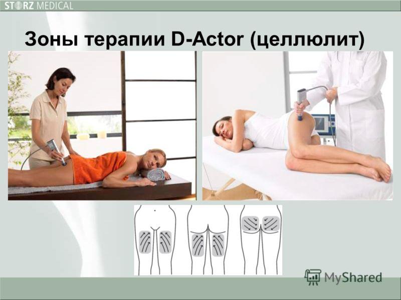 Зоны терапии D-Actor (целлюлит)