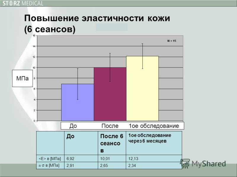 Повышение эластичности кожи (6 сеансов) ДоПосле 6 сеансо в 1ое обследование через 6 месяцев в [МПа]6,9210,0112,13 ± σ в [МПа]2,912,652,34 МПа До После 1ое обследование