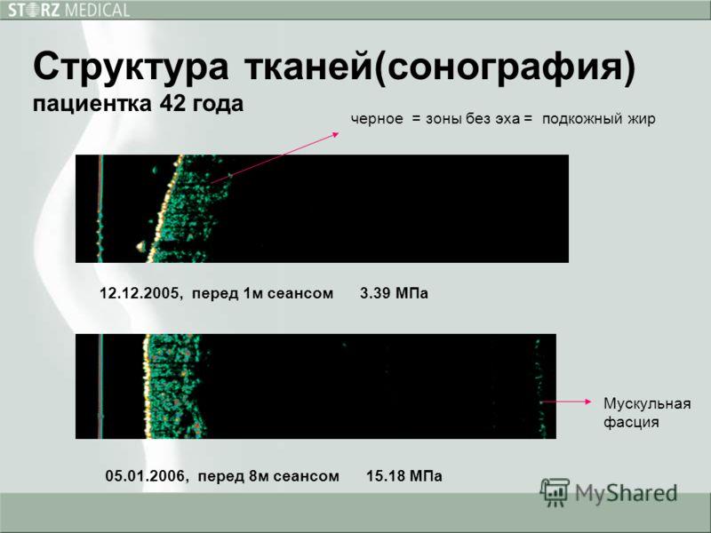 12.12.2005, перед 1м сеансом 3.39 МПа 05.01.2006, перед 8м сеансом 15.18 МПа черное = зоны без эха = подкожный жир Мускульная фасция Структура тканей(сонография) пациентка 42 года