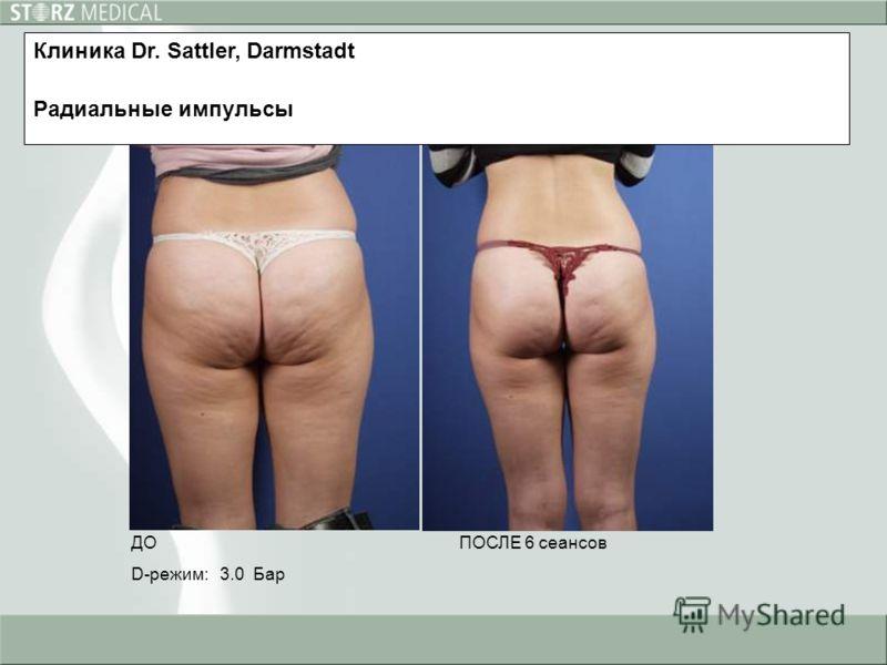ДО D-режим: 3.0 Бар ПОСЛЕ 6 сеансов Клиника Dr. Sattler, Darmstadt Радиальные импульсы