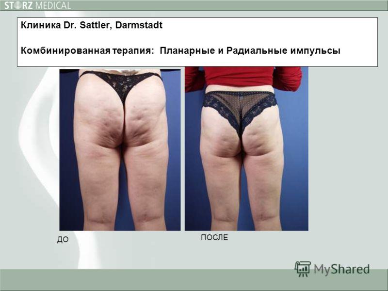ДО ПОСЛЕ Клиника Dr. Sattler, Darmstadt Комбинированная терапия: Планарные и Радиальные импульсы