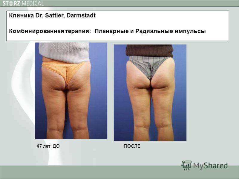 47 лет; ДОПОСЛЕ Клиника Dr. Sattler, Darmstadt Комбинированная терапия: Планарные и Радиальные импульсы