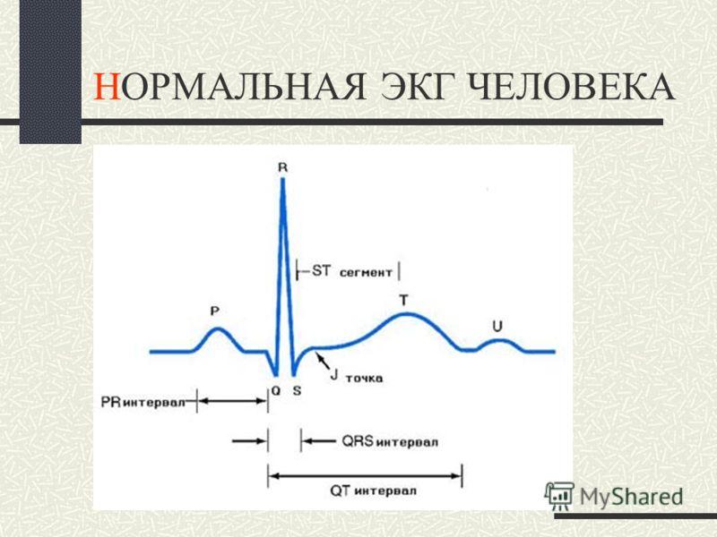 Интегральный вектор меняет свою направленность и величину в зависимости от фазы возбуждения и скорости eё проведения. Суммарная ЭДС рабочего миокарда изменяет электропроводность тканей тела