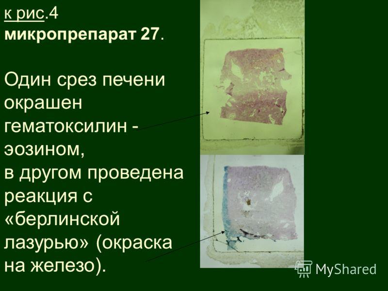 к рис.4 микропрепарат 27. Один срез печени окрашен гематоксилин - эозином, в другом проведена реакция с «берлинской лазурью» (окраска на железо).
