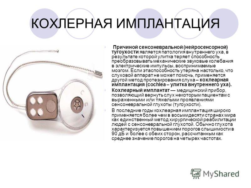 КОХЛЕРНАЯ ИМПЛАНТАЦИЯ Причиной сенсоневральной (нейросенсорной) тугоухости является патология внутреннего уха, в результате которой улитка теряет способность преобразовывать механические звуковые колебания в электрические импульсы, воспринимаемые моз