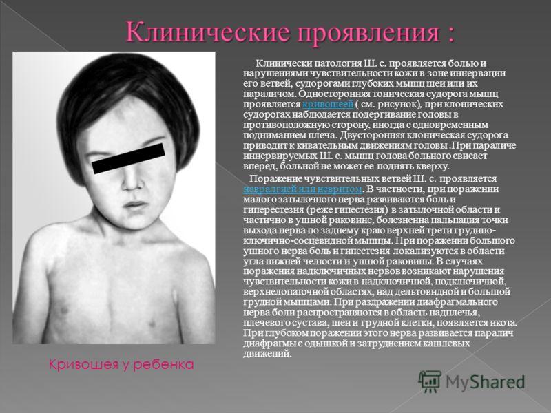 Клинически патология Ш. с. проявляется болью и нарушениями чувствительности кожи в зоне иннервации его ветвей, судорогами глубоких мышц шеи или их параличом. Односторонняя тоническая судорога мышц проявляется кривошеей ( см. рисунок), при клонических