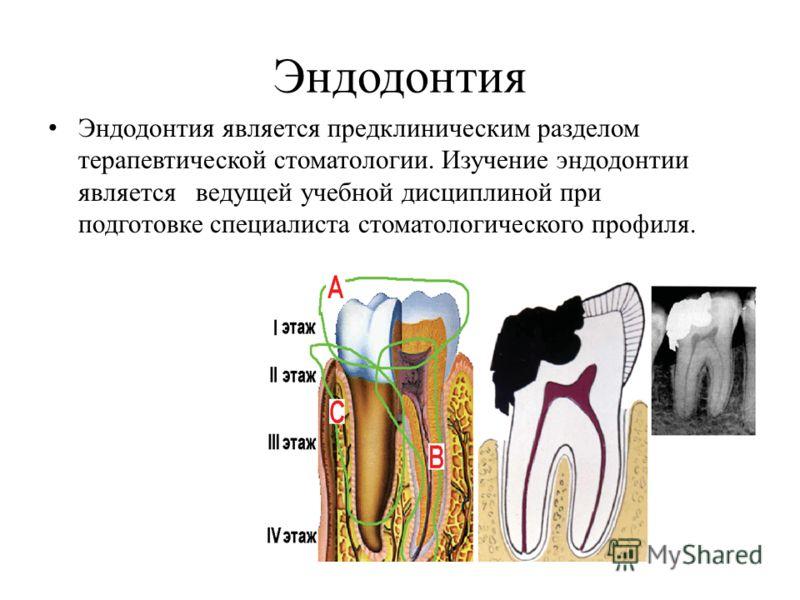 Эндодонтия Эндодонтия является предклиническим разделом терапевтической стоматологии. Изучение эндодонтии является ведущей учебной дисциплиной при подготовке специалиста стоматологического профиля.