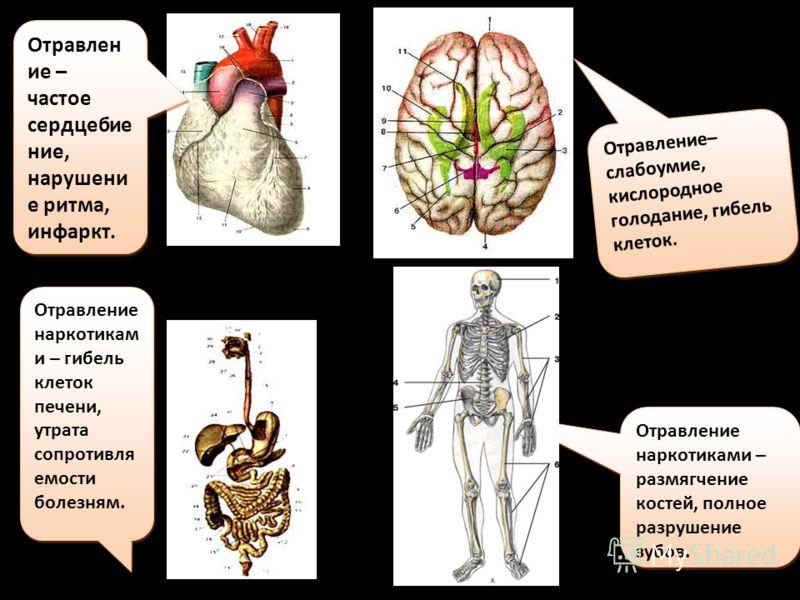 Отравлен ие – частое сердцебие ние, нарушени е ритма, инфаркт. Отравление– слабоумие, кислородное голодание, гибель клеток. Отравление наркотикам и – гибель клеток печени, утрата сопротивля емости болезням. Отравление наркотиками – размягчение костей