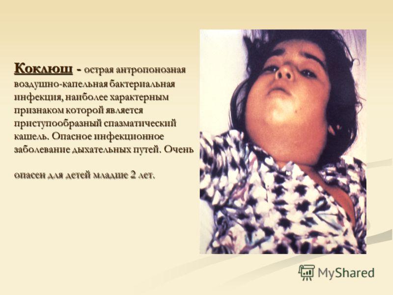 Коклюш - острая антропонозная воздушно-капельная бактериальная инфекция, наиболее характерным признаком которой является приступообразный спазматический кашель. Опасное инфекционное заболевание дыхательных путей. Очень опасен для детей младше 2 лет.