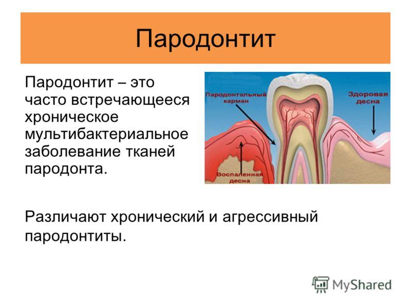 Пародонтит Пародонтит – это часто встречающееся хроническое мультибактериальное заболевание тканей пародонта. Различают хронический и агрессивный пародонтиты.