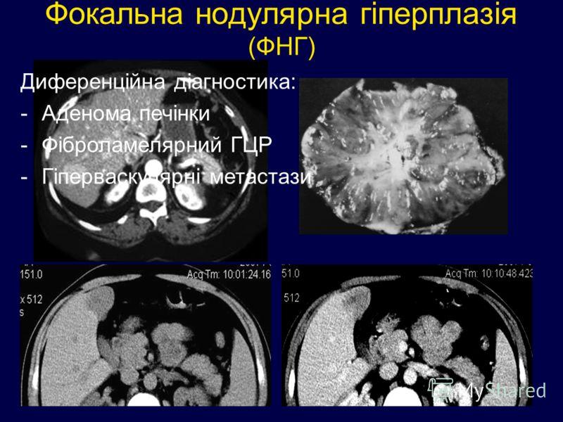 Фокальна нодулярна гіперплазія (ФНГ) Диференційна діагностика: -Аденома печінки -Фіброламелярний ГЦР -Гіперваскулярні метастази