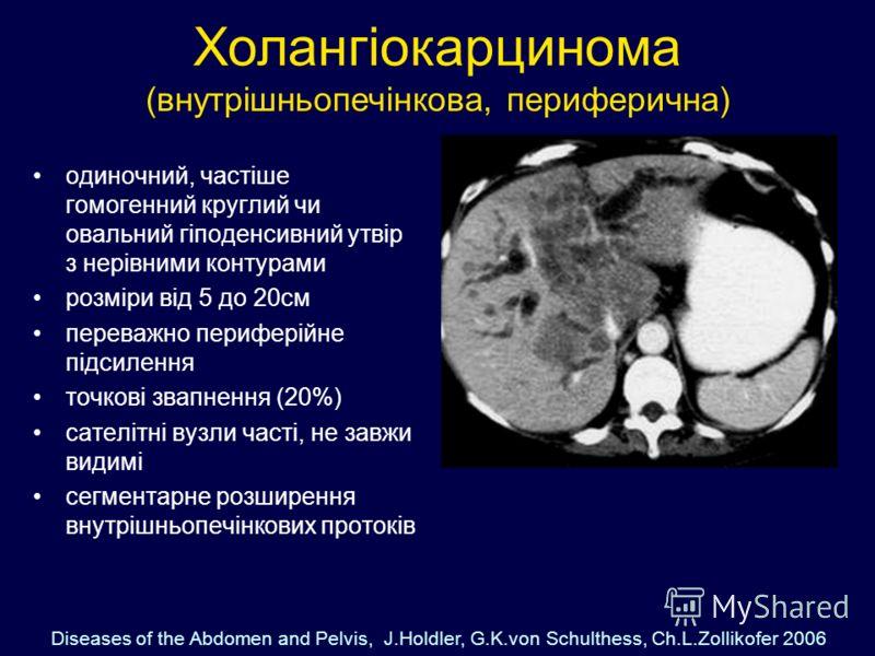 Холангіокарцинома (внутрішньопечінкова, периферична) одиночний, частіше гомогенний круглий чи овальний гіподенсивний утвір з нерівними контурами розміри від 5 до 20см переважно периферійне підсилення точкові звапнення (20%) сателітні вузли часті, не