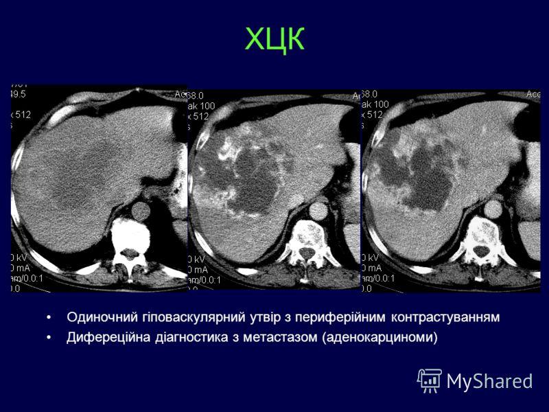 ХЦК Одиночний гіповаскулярний утвір з периферійним контрастуванням Дифереційна діагностика з метастазом (аденокарциноми)