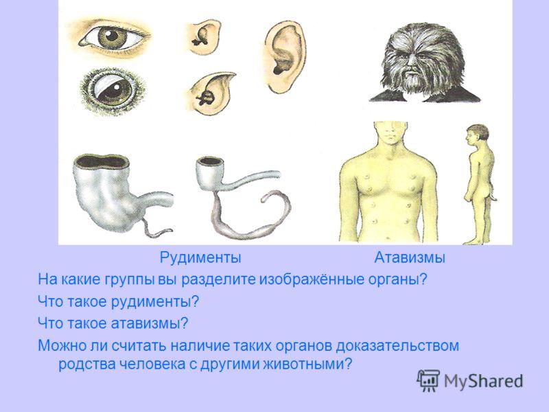 Рудименты Атавизмы На какие группы вы разделите изображённые органы? Что такое рудименты? Что такое атавизмы? Можно ли считать наличие таких органов доказательством родства человека с другими животными?