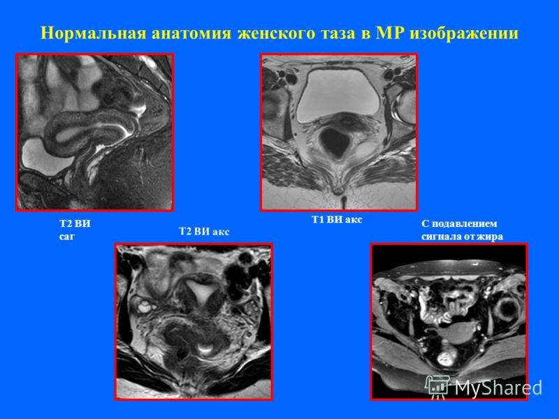Нормальная анатомия женского таза в МР изображении Т2 ВИ саг Т2 ВИ акс Т1 ВИ акс С подавлением сигнала от жира